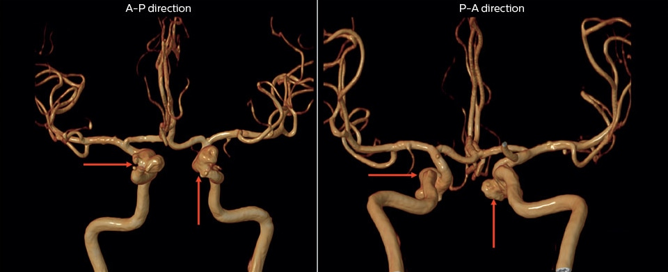 mr angiography of multiple cerebral aneurysms