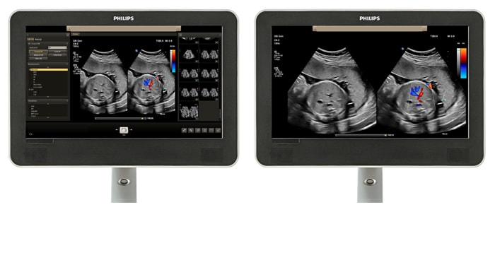 Viewing area comparison with an obstetrics image on screen.
